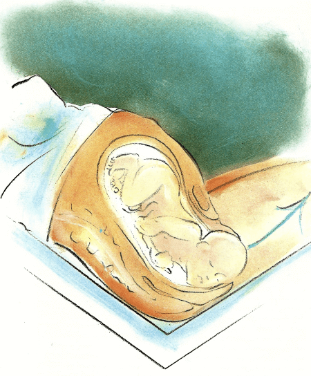 Die Endphase - Die verschiedenen Geburtsphasen