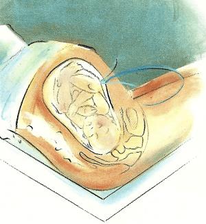Die Eröffnungsphase - Die verschiedenen Geburtsphasen