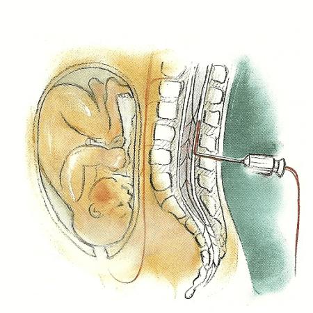 Die verschiedenen Hilfen gegen den Schmerz bei der Geburt